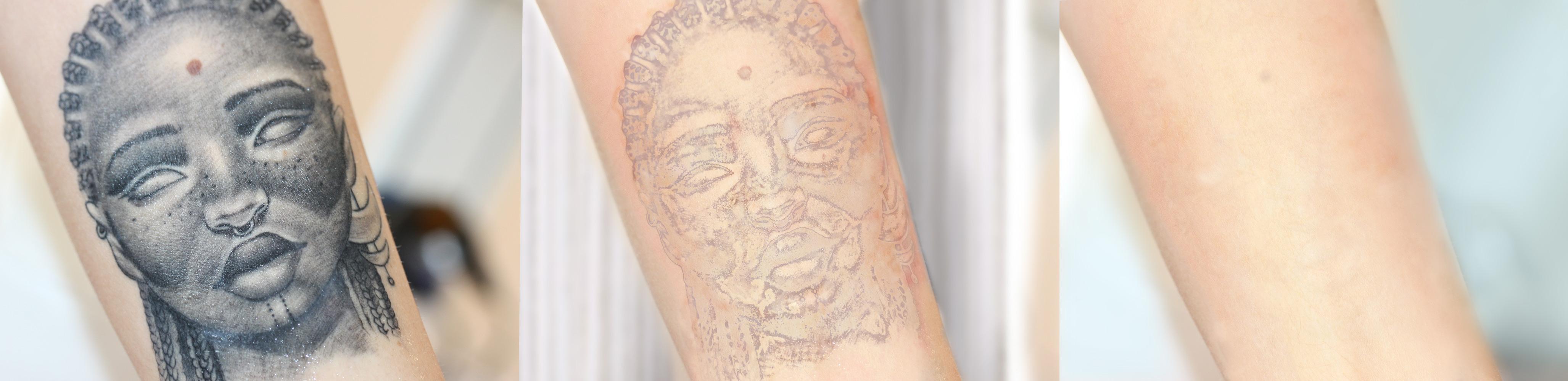 Vorher Nacher Vergleich Tattooentfernung