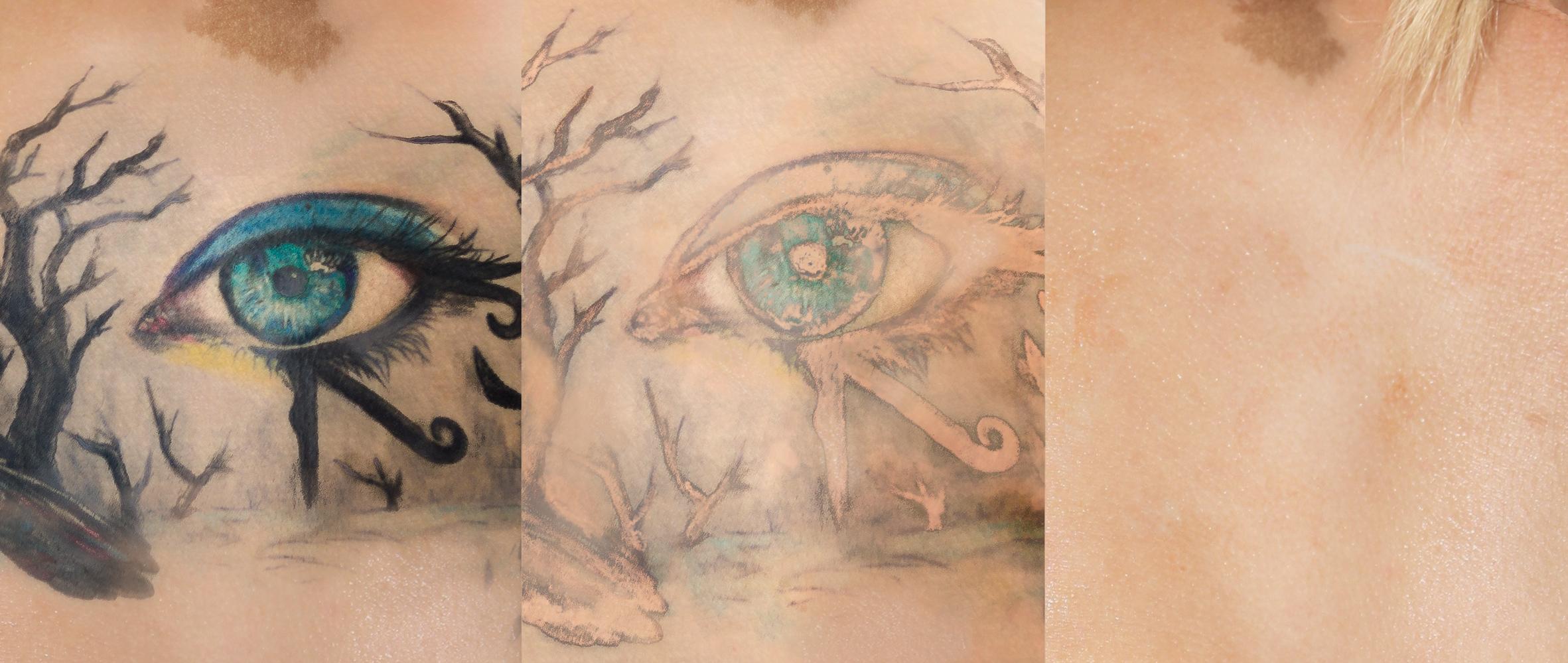 Entfernung buntes Tattoo