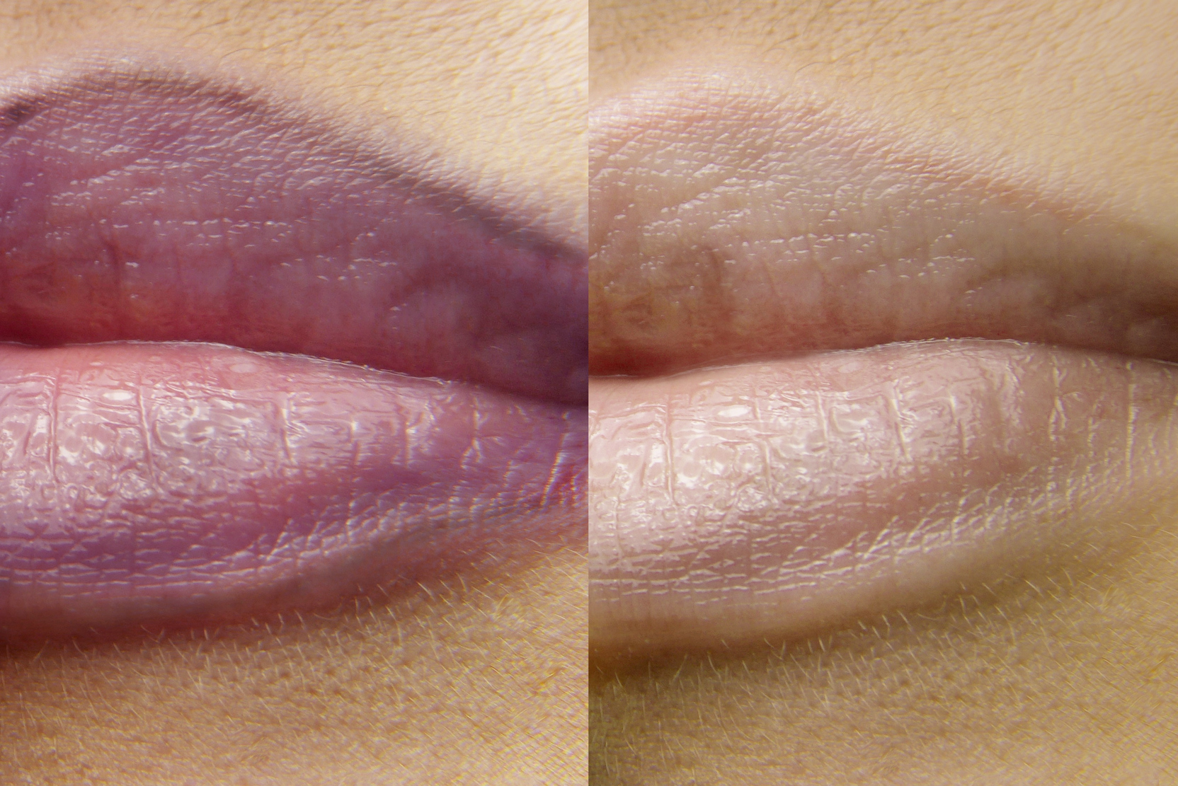 Entfernung Permanent MakeUp Lippe
