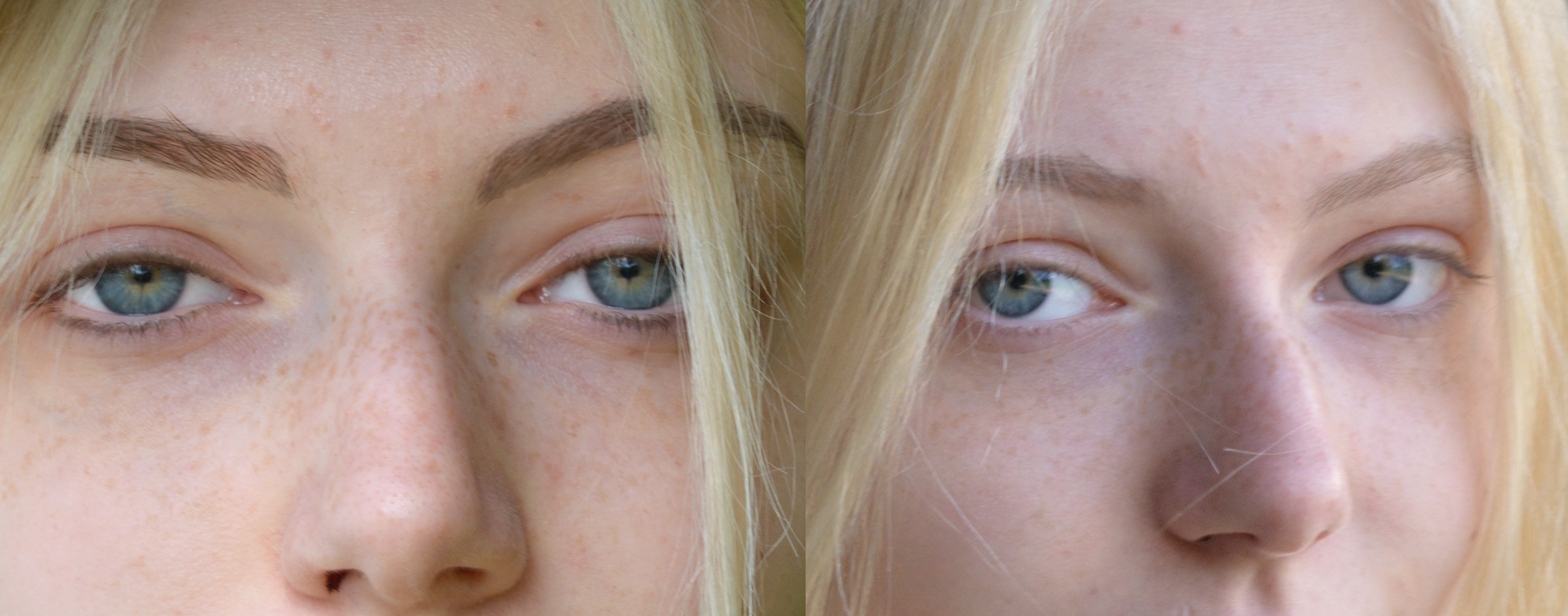 Laserentfernung Permanent MakeUp