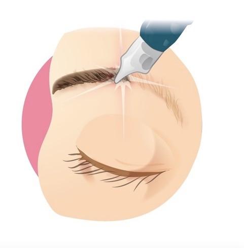 PMU-Entfernung-Augenbrauen